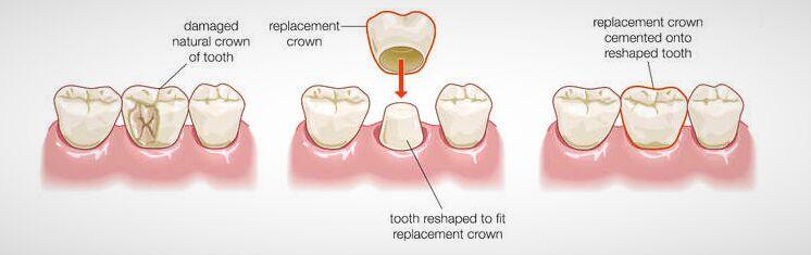 Dental Crowns Surgery Singapore