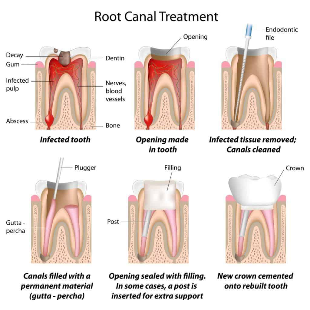 Root Canal Treatment and surgery Singapore